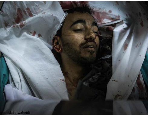 استشهاد فلسطيني وإصابة آخرين بقصف إسرائيلي على غزة