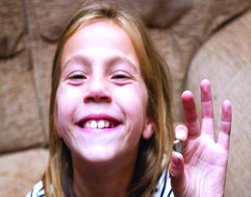 استئصال بطارية من أنف طفلة وأضرارها تمتد 15 عاماً!