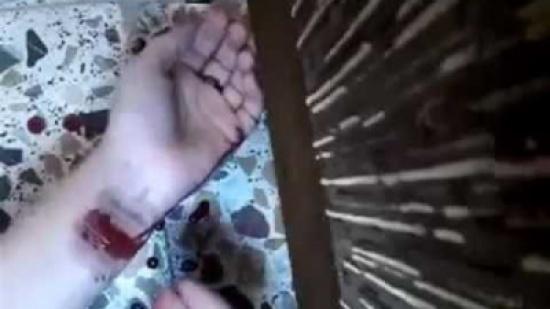 يقطع يدي زوجته بعد أن طلبت الطلاق