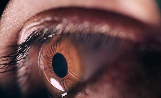 صور: امرأة تصاب بـ500 ثقب في قرنية عينها بسبب الهاتف