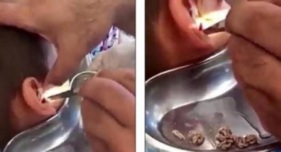 بالفيديو: شعرَ بألم في أذنه.. ولن تصدّقوا ماذا اكتشف الطبيب!