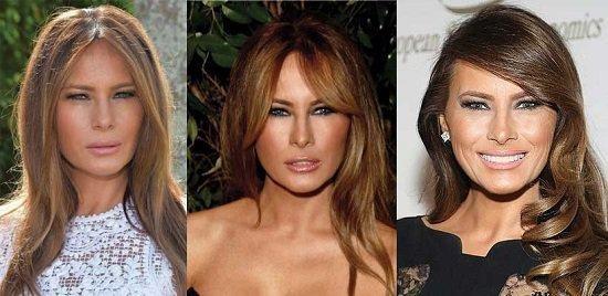 أربع عمليات تجميل أجرتها ميلانيا ترامب...فما هي؟