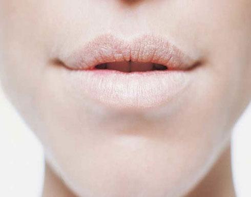علاجات منزلية لجفاف الفم.. جرّبوها!