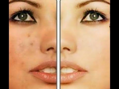 بالفيديو.. كيف تتخلصين من البقع الداكنة في الوجه والجسم؟