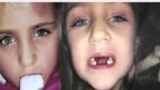 بالفيديو: شكّت بطبيب الأسنان فصوّرت لتكتشف ماذا يفعل بابنتها... لن تصدقوا ماذا فعل!