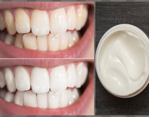 معجون أسنان طبيعي.. يقضي على الإصفرار ورائحة الفم الكريهة