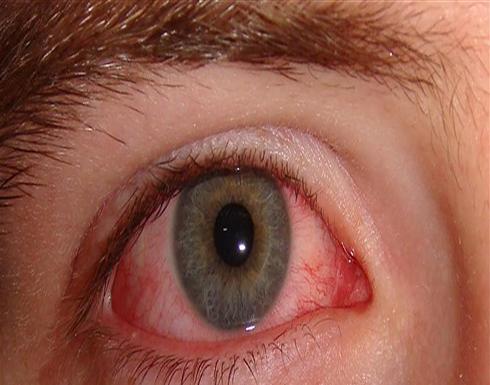 """""""الكلور"""" يقلق الاطباء.. هل تعرفون المخاطر التي تتعرض لها عيونكم بالمسابح؟"""