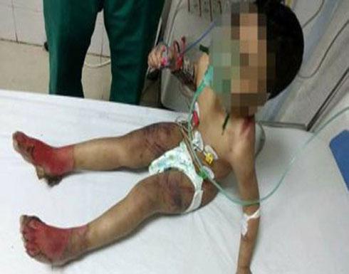 القبض على ربة منزل عذبت طفلها وحرقت جسده بمساعدة زوجها (صور صادمة)