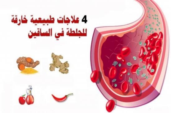 4 علاجات طبيعية خارقة للجلطة في الساقين