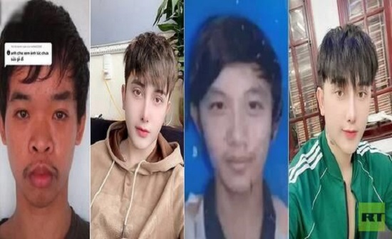 شاب فيتنامي يجري 9 عمليات تجميل بعد السخرية من شكله