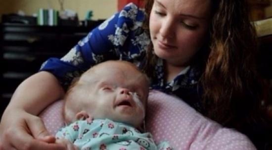 طفلة برأس متضخم تتحدى توقعات الأطباء
