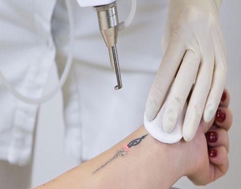 الوشم يُحذّركِ مبكرًا من أمراض السكري والسرطان.. كيف؟