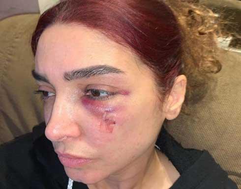 روجينا تكشف اخر تطورات حالتها الصحية بعد إصابتها في وجهها .. صورة