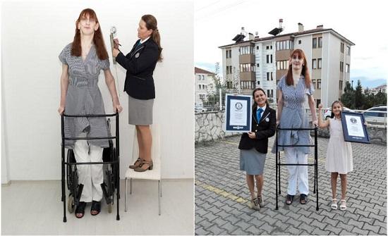 تركية تدخل غينيس كونها أطول امرأة في العالم