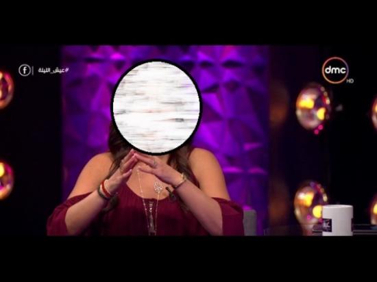 بالفيديو - فنانة شهيرة تكشف عن اصابتها بعاهة مستديمة