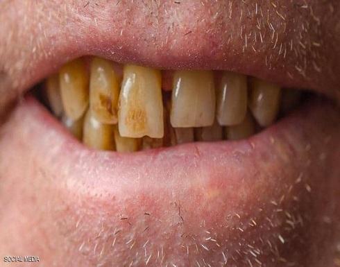 """كيف تحمي أسنانك من """"لون القهوة""""؟"""