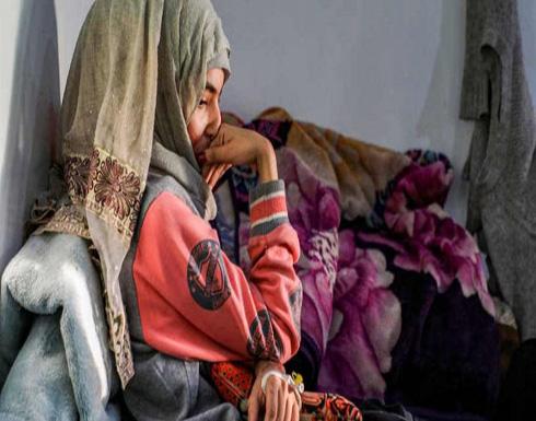 العنود.. شابة يمنية تعرضت للعنف والحرق بالأسيد.. والجمهور يغضب!