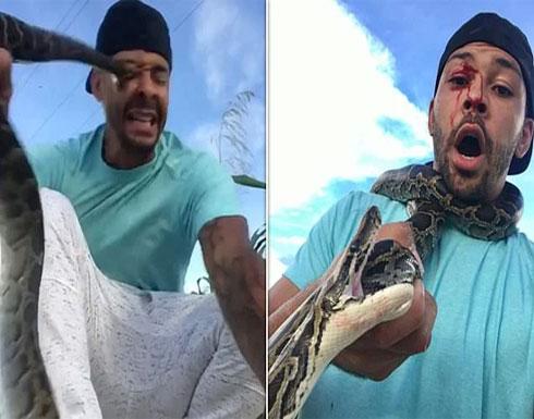 بالفيديو .. ثعبان ضخم يغرز أنيابه في وجه شاب أمريكي حاول الاستعراض به