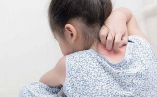 اسباب انتشار حبوب صغيرة في جسم طفلي
