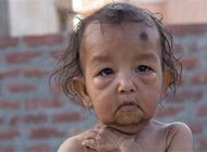 بالفيديو: طفلان يعانيان من حالة نادرة تجعلهما يشيخان بسرعة