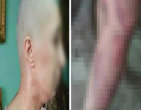 مصري يحلق شعر زوجته ويطفئ السجائر في جسدها .. تفاصيل
