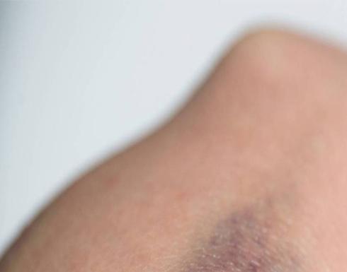 البقع الزرقاء تنذر بإصابة الأطفال بنزيف الدم الوراثي