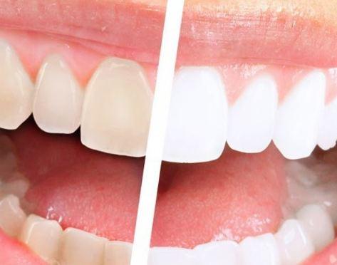 6 طرق لتبييض وإزالة الجير عن الأسنان بشكل طبيعي