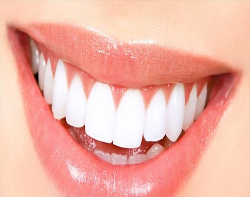 للحامل.. خبراء يحذرون من خطورة تبييض الأسنان