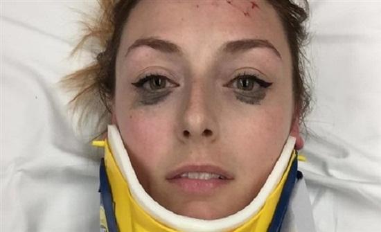 فتاة تشيد بثبات «الآيلاينر» أثناء تعرضها لحادث سيارة مروع (صور)