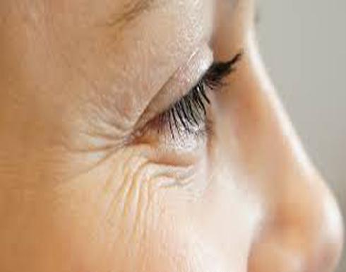 لماذا ينصح الخبراء بعدم إزالة تجاعيد الوجه؟