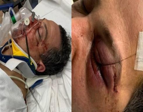 اعتقال امرأة شاركت في هجوم وحشي على عائلة عربية في نيويورك .. صور