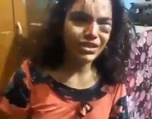 كاد يقتلع عينها.. شاهد: طفلة عراقية تبكي في حالة رعب من والدها بعد ضربها بطريقة وحشية!