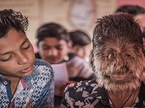 طفل بوجه ذئب في الهند.. ما قصته؟ (صور)
